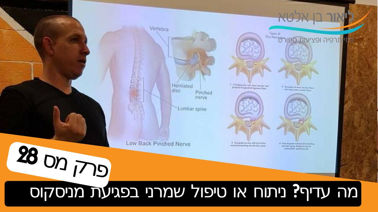 פודקאסט – האם לנתח או לנסות טיפול פיזיותרפיה לאחר קרע לא טראומתי של מניסקוס