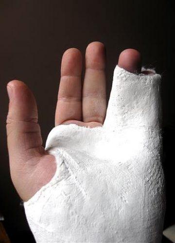 שבר בשורש כף היד