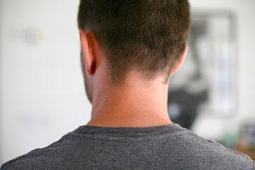 פריצת דיסק צווארית