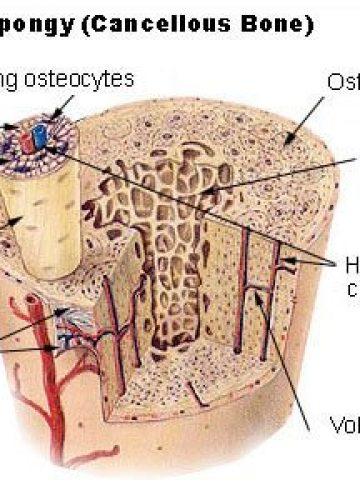 אוסטאופרוזיס