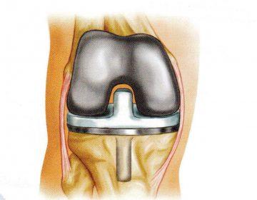 אפשרויות נוספות לפני החלפת מפרק הברך