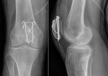 שבר של עצם הפיקה